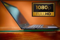 Dell Inspiron 5570 Core i5-7200U/8G/1TB/FHD/W10P/BLACK